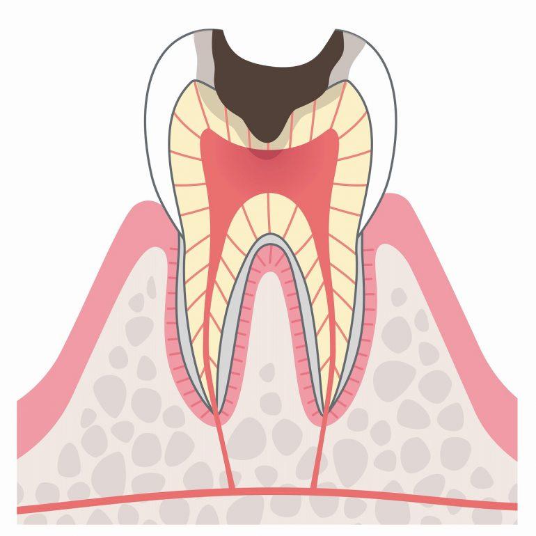 C3:神経に達したむし歯