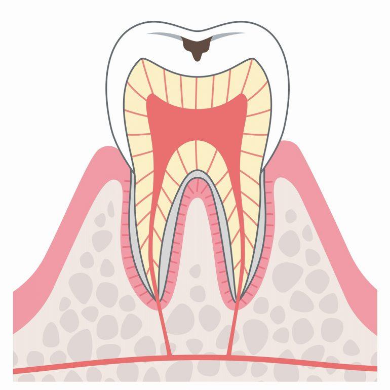 C1:エナメル質のむし歯