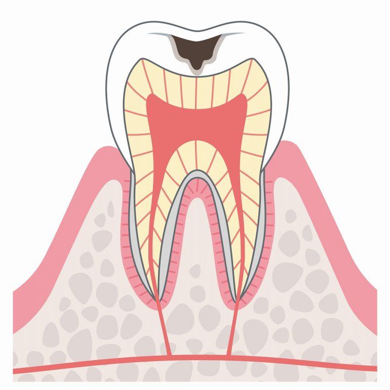 C2:象牙質のむし