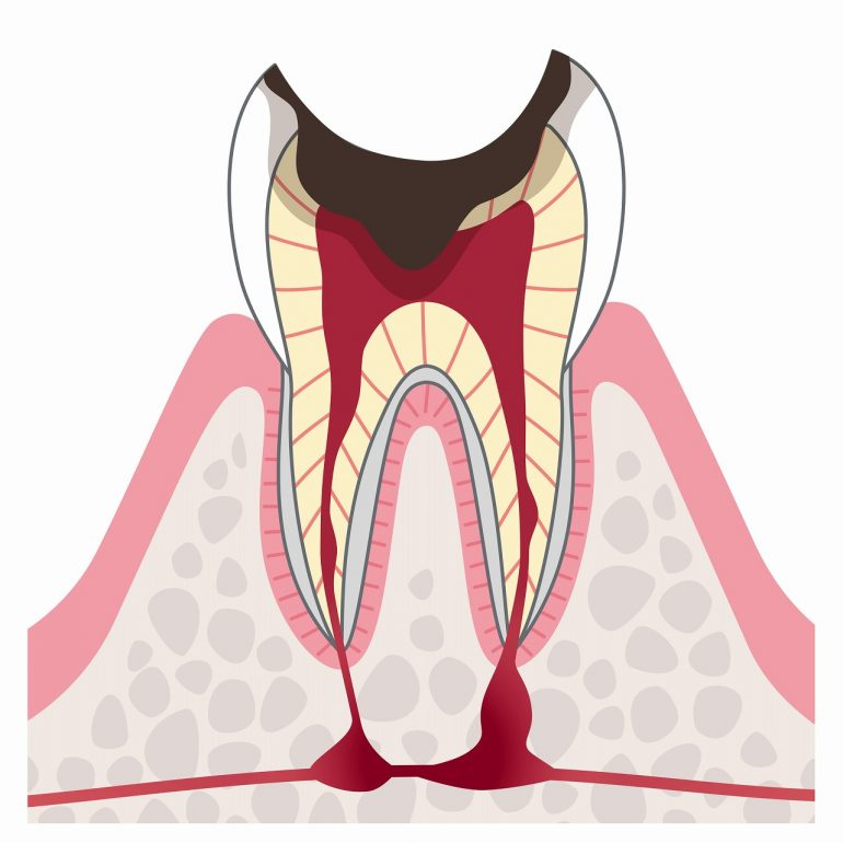 C4:歯根に達したむし歯