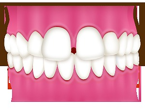 すきっ歯の治療