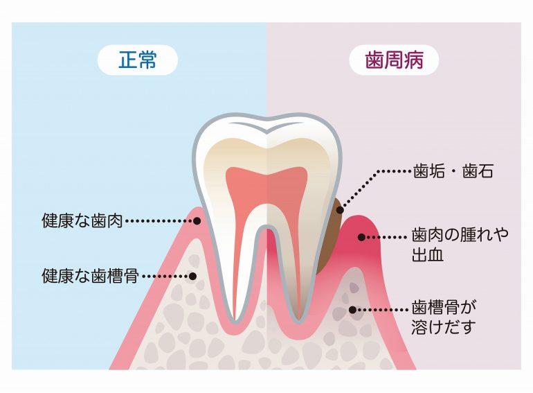 日本人に多い歯周病