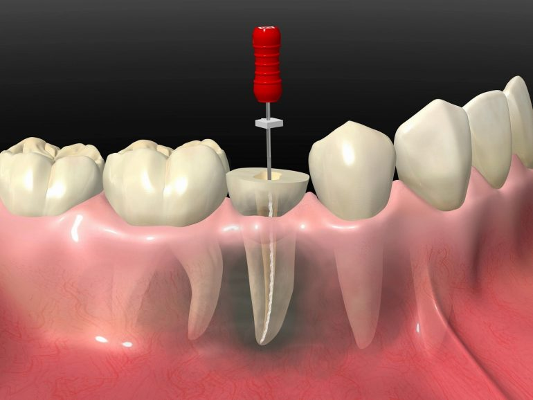 根管治療~ひどい虫歯でも抜歯で歯を失わないために~