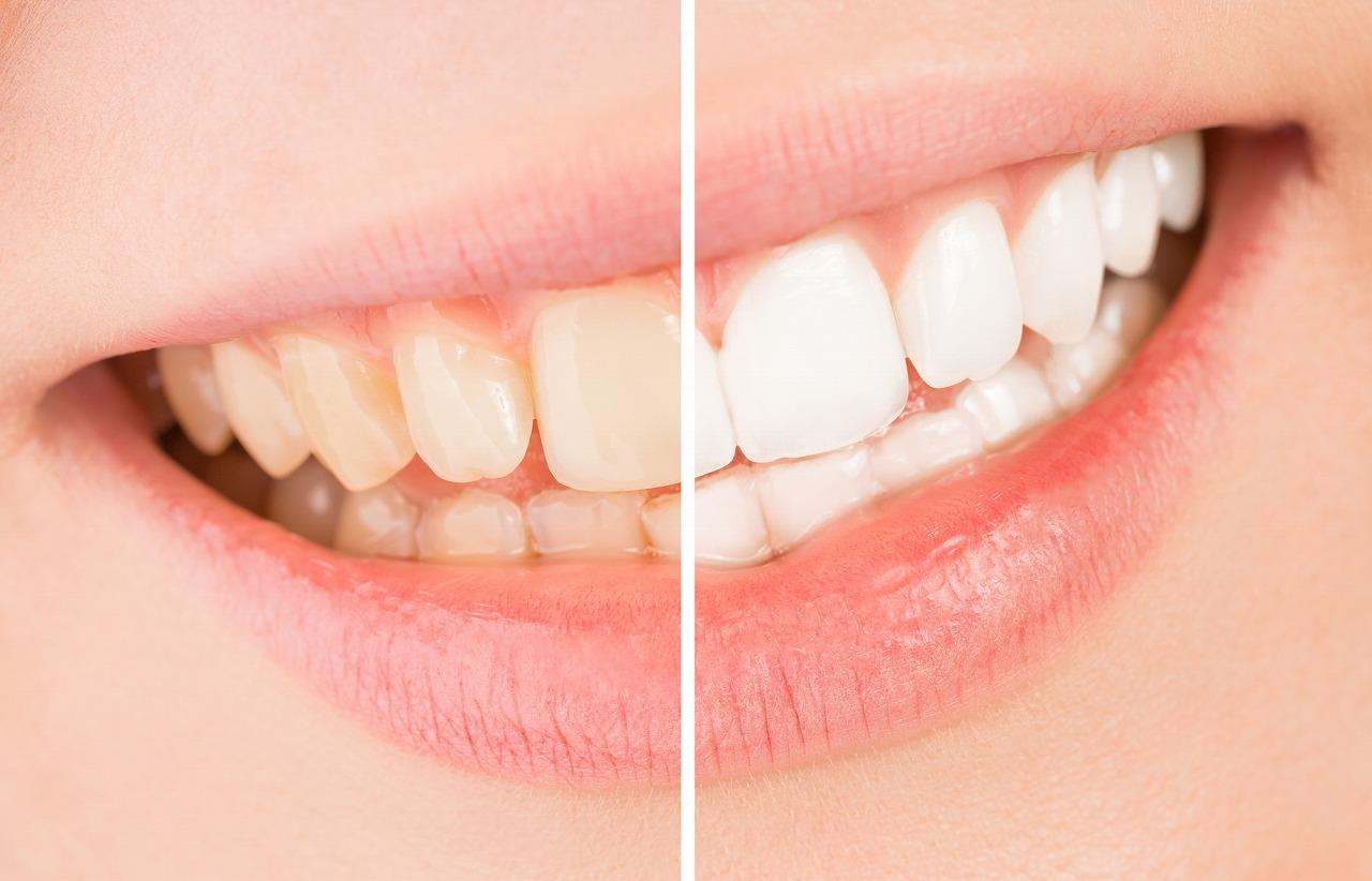 ホワイトニング~歯を削らずに手軽に白く~