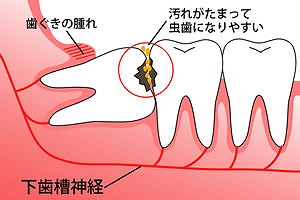 抜歯の基準
